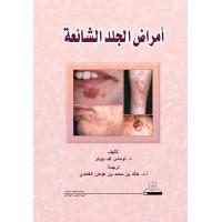 أمراض الجلد الشائعة